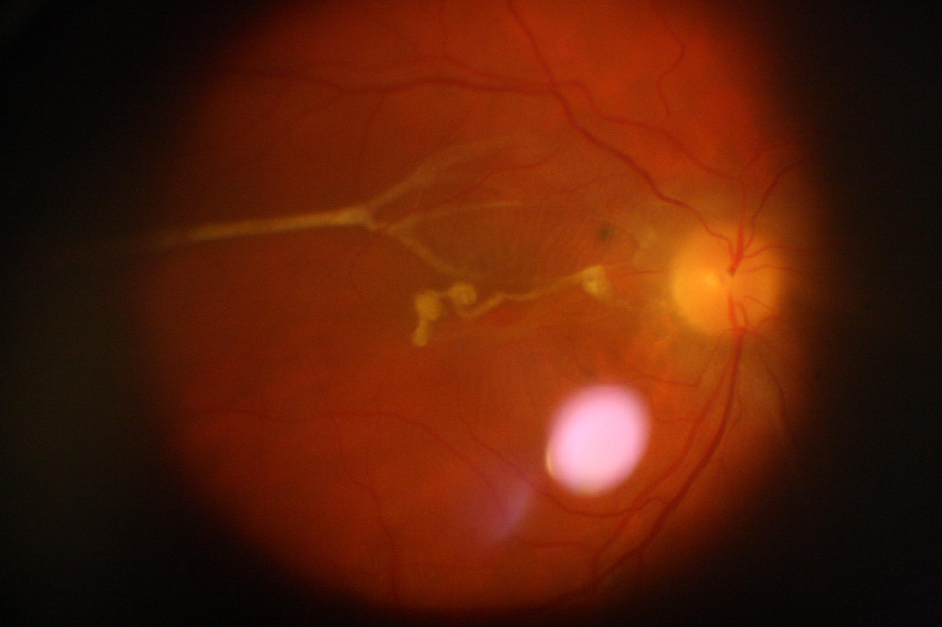 Колобома и гетерохромия (разная пигментация глаз) — довольно редкие патологии зрительных органов.